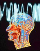 Il cervello colpito da epilessia
