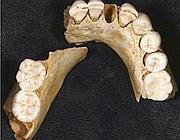L'arcata dentaria