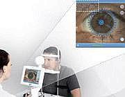 Hypostasis sotto un arrossimento di occhio