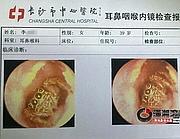 La foto che mostra il dettaglio dell'animaletto ripreso attraverso un'endoscopia