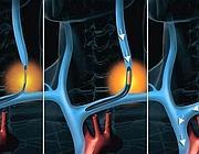 Il 'metodo Zamboni' consiste in un allargamento delle vene che drenano il sangue dal cervello
