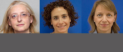 Gli esperti che rispondono ai lettori sul forum allergie alimentari nel bambino: da sinistra Antonella Muraro, Francesca Lazzarotto, Roberta Bonaguro
