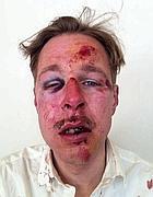 Wilfred de Bruijn dopo il pestaggio (da Facebook)