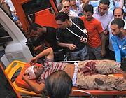 Uno dei feriti negli scontri di Alessandria (Afp)
