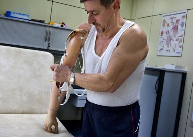 Vigorso di Budrio (Bologna), ore 21.30 - Giampaolo Ferramosca, invalido sul lavoro, prova un arto artificiale nel centro protesi Inail - Foto di Riccardo Venturi