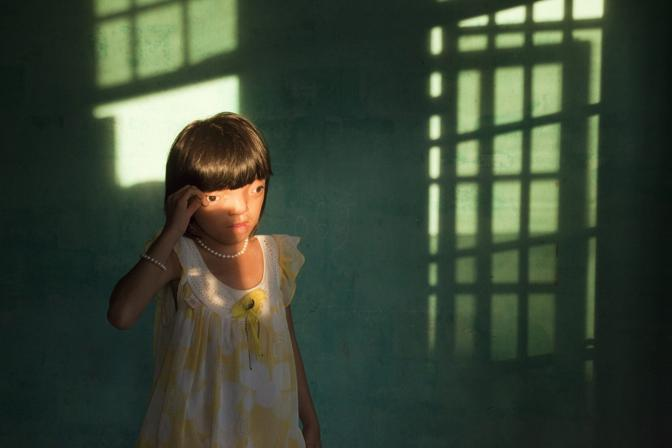 Nguyen Thi Li, 9 anni, vittima dell'Agente Arancio a Da Nang, Vietnam - Foto di Ed Kashi (Usa), secondo classificato nella categoria «Singles Contemporary Issue»