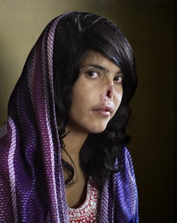 La vincitrice assoluta: il ritratto di Bibi Aisha, 18enne afghana - Foto di Jodi Bieber (Sudafrica), pubblicata su «Time» dell'1 agosto 2011. La foto ha vinto anche la categoria «Ritratti individuali»