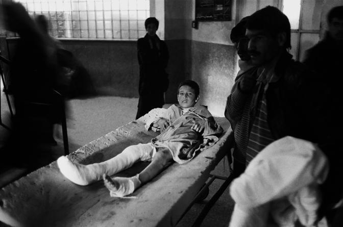 Kabul 1995 un bambino ferito da un missile