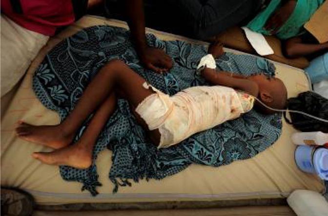 Un bambino su un letto all'ospedale  Choscal