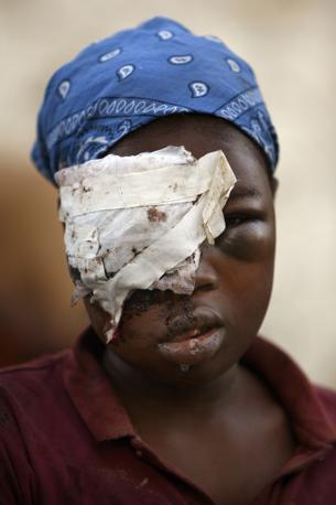 Una donna sopravvissuta ferita al volto (Ap)
