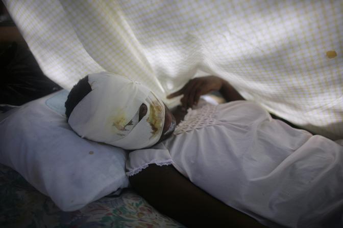 Una giovane donna con il volto fasciato dopo il sisma (Ap)