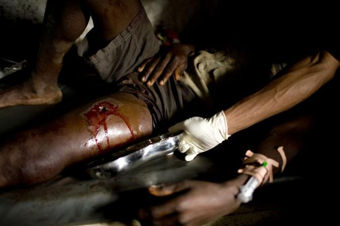 Un ferito nella clinica gestita da Medici senza frontiere nel  villaggio di Muheto (Msf)