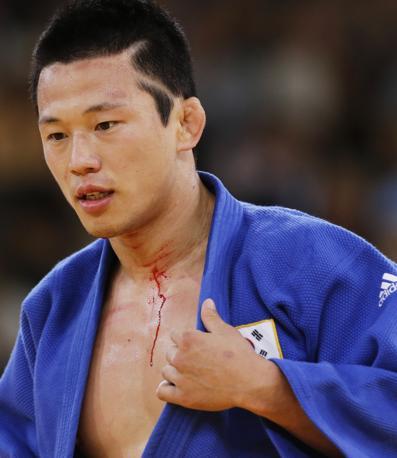 Il coreano Wang Ki-Chun mostra una ferita durante la seminfinale per il bronzo nella categoria 73 kg...(Ap)