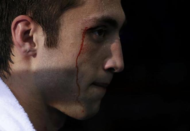 L'azero sanguina dal sopracciglio sinistro (Reuters/Sagolj)