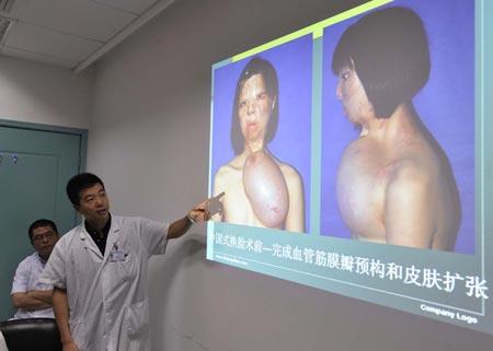Le immagini della ricostruzione del volto diffuse dall'ospedale cinese
