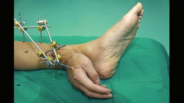 Per salvare la mano mozzata di Xie Wei i medici cinesi hanno ...