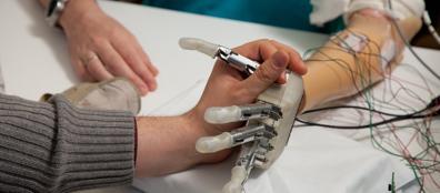 La mano bionica impiantata a Dennis Aabo Sorensen
