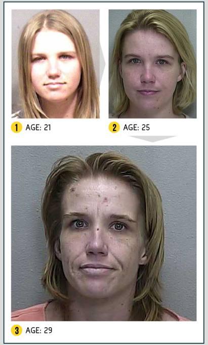 Ecco come la reginetta di bellezza si rovinata il volto - Sali da bagno droga effetti ...