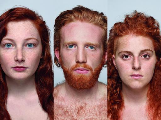 Quel gene dei capelli rossi che rischia l'estinzione