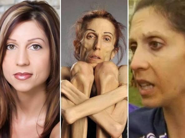Rachael Farrokh prima di ammalarsi (da sinistra), ad aprile quando pesava 20 kg e adesso