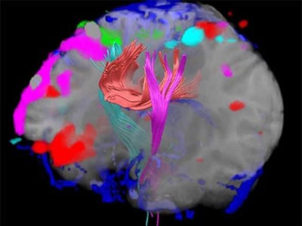 L'immagine di un cervello ottenuta con la risonanza magnetica
