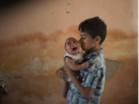 Un bambino brasiliano di due mesi affetto da microcefalia in braccio af fratello.  La grave malformazione è stata messa in relazione con il virus Zika, trasmesso dalle zanzare (AP)