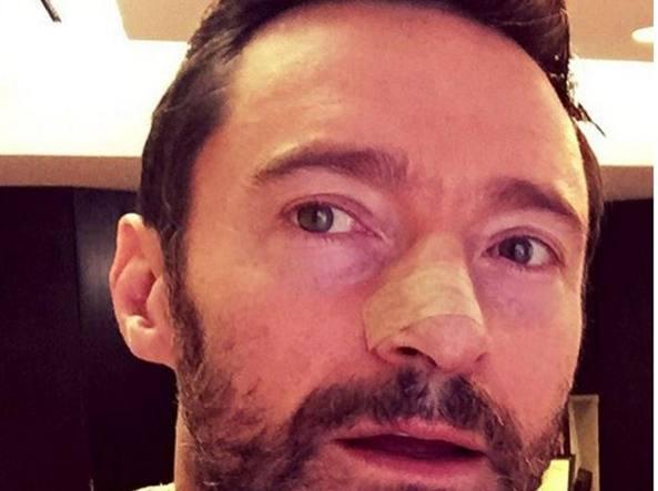Il selfie di Wolverine