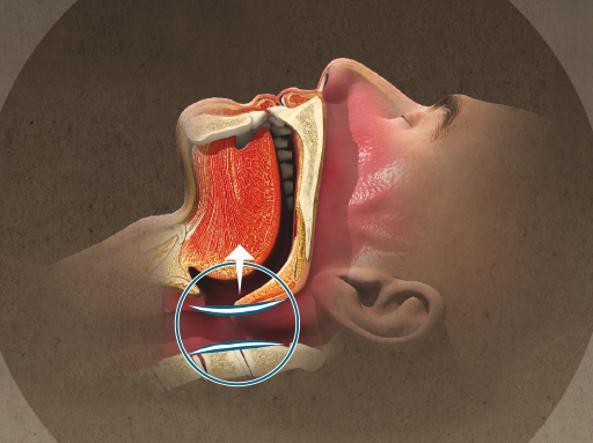 Situazione nornale: durante il sonno  i muscoli che controllano la lingua e il palato molle tengono le vie aeree aperte (illustrazione di Mirko Tangherlini)