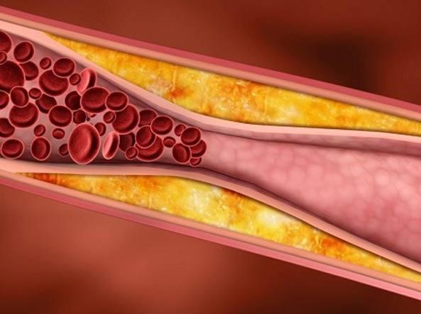 Un'arteria in parte ostruita