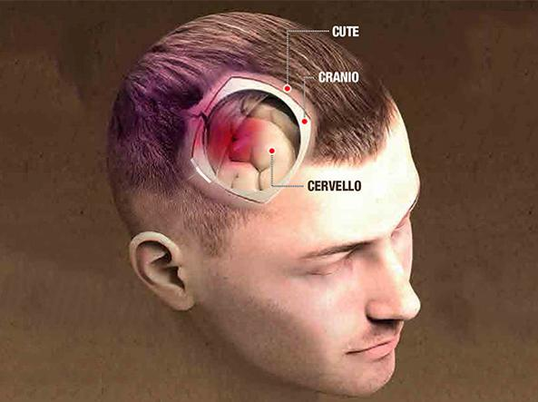 Tutto quel che serve sapere sul trauma cranico e  come capire se è grave
