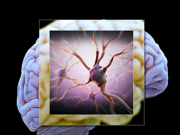 Sclerosi multipla, nuova terapia a base di staminali