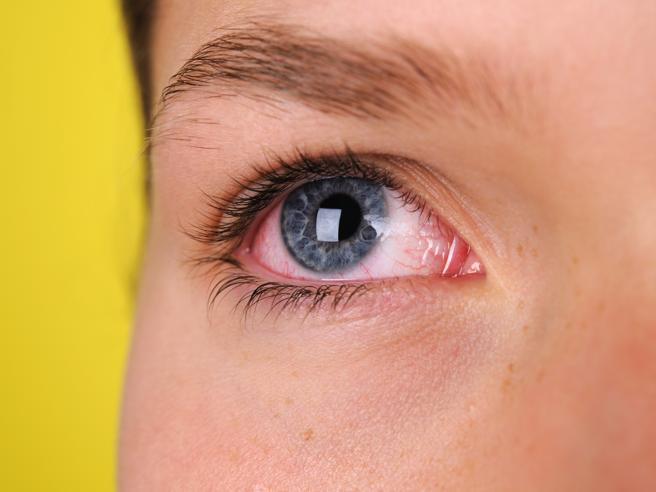 Dall'arrossamento allo sfarfallio: 5 sintomi oculari da non trascurare mai