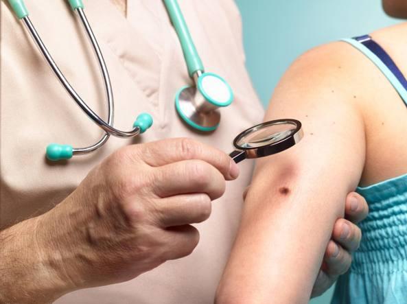 Scoperta molecola che blocca il Melanoma maligno