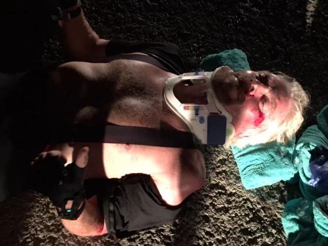 Richard Branson, dopo l'incidente in bici pubblica le foto: «Ho pensato di morire»