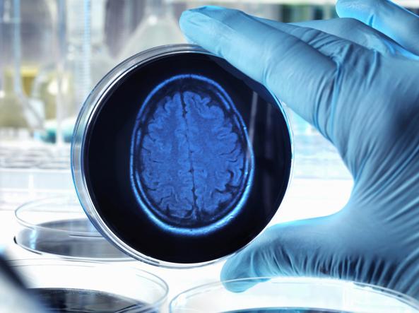 Alzheimer: possibile cura da un nuovo anticorpo monoclonale