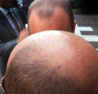 Scommessa L'Oréal: trapianti addio I capelli ricresceranno in testa