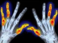 Scoperto «grilletto molecolare»dell'artrite reumatoide