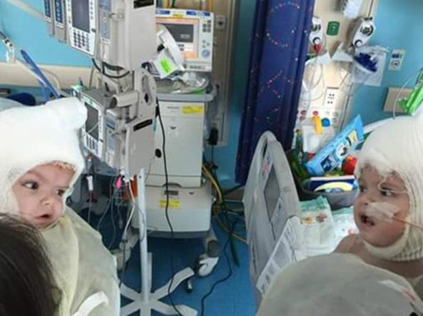 Il momento in cui gli ex gemelli siamesi Jadon e Anias si guardano negli occhi per la prima volta, dopo essere stati separati dalla testa (foto Facebook)