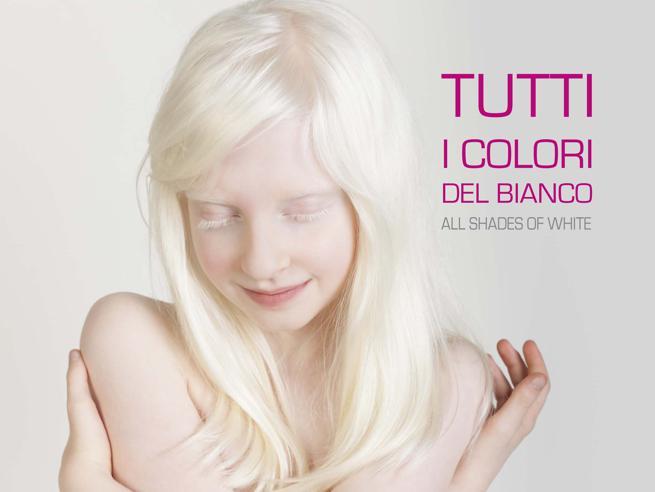 Tutti i colori del biancoIl calendario degli albini