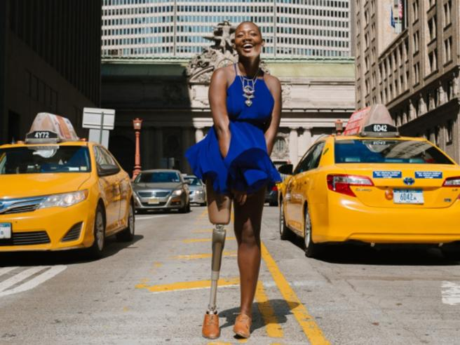 La  blogger senza una gamba che sfida i canoni della bellezza