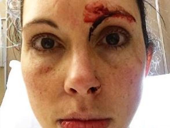 Kelly Herron dopo l'aggressione
