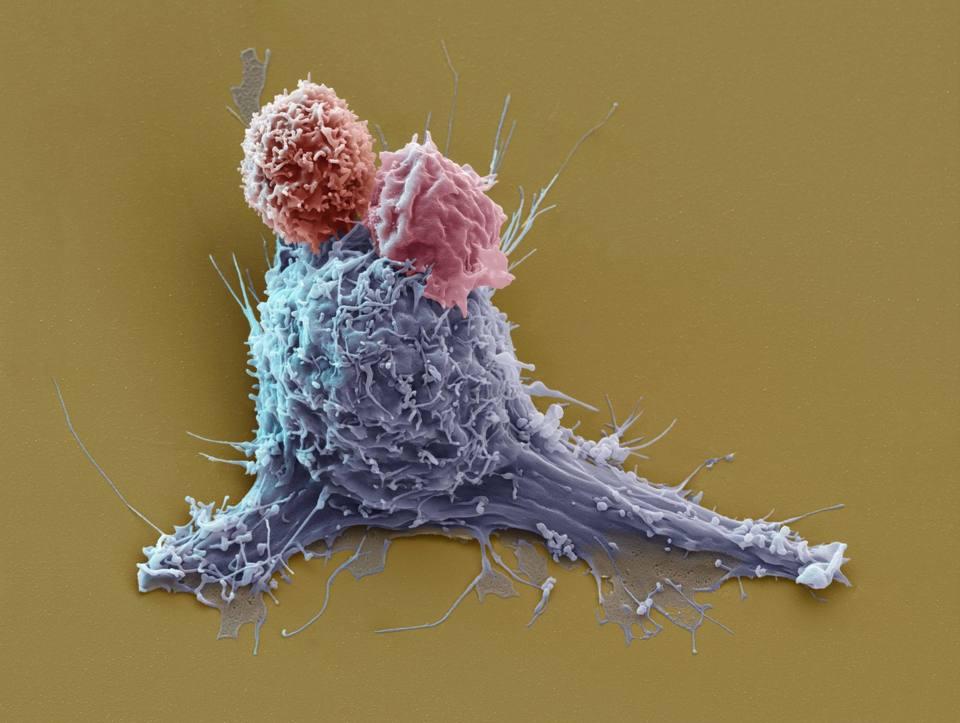 Linfociti T
