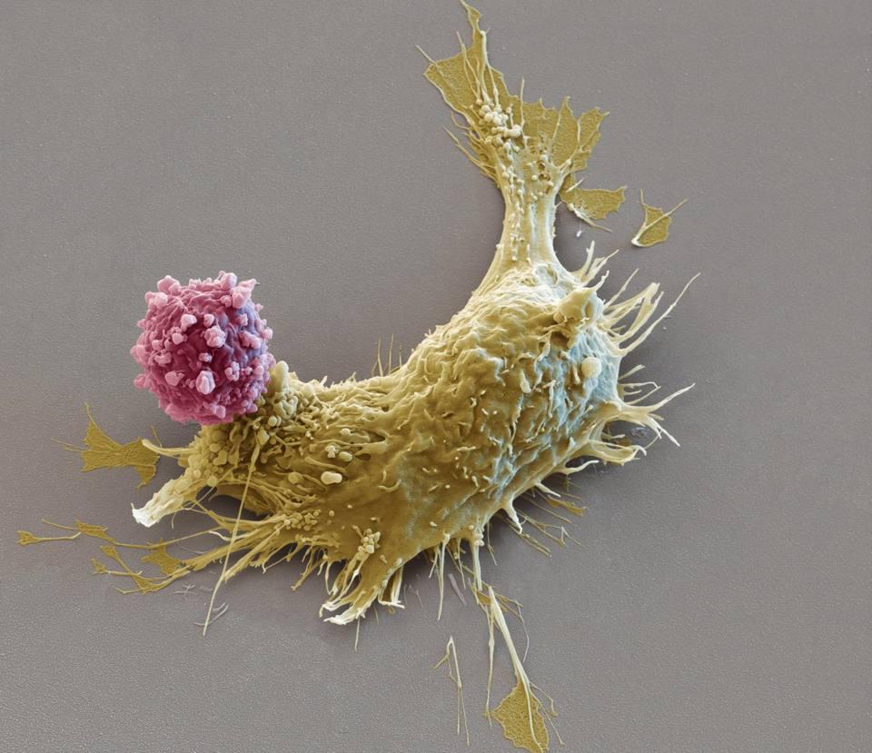 Le cellule CAR T