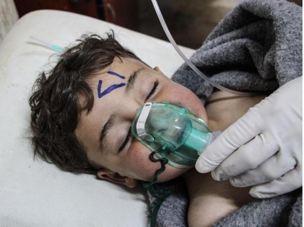 Una foto diffusa dall'agenzia Epa, che l'ha ricevuta dall'Idlib Media Center, con un bimbo rimasto vittima dell'attacco a Idlib.