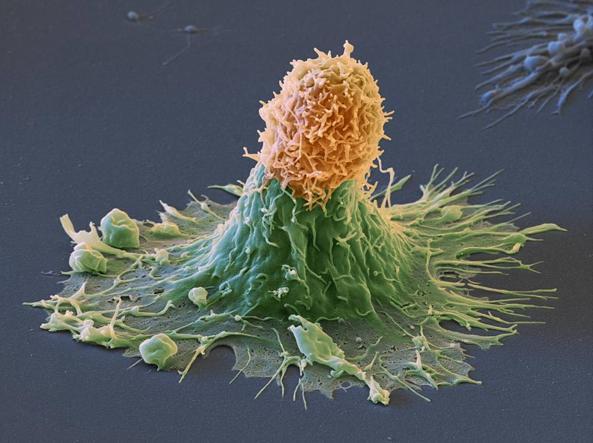 La cellula del tumore al seno (verde) attaccata dal sistema immunitario (Ipa)