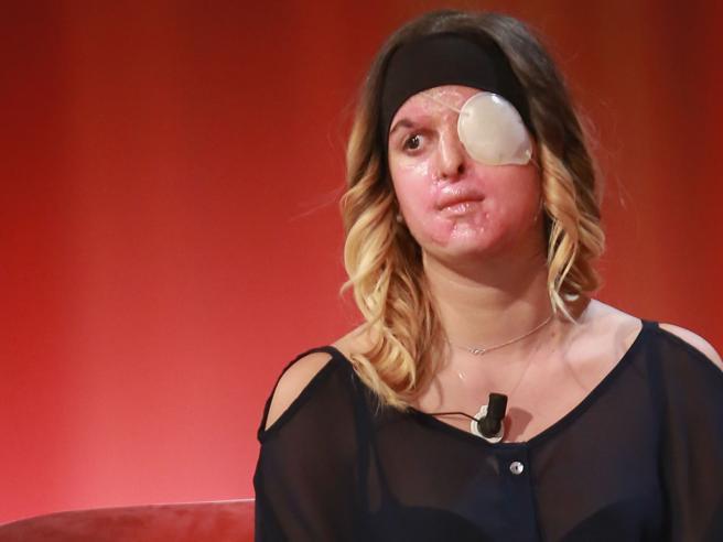 La scelta della miss sfregiata con l'acido: «Ecco il mio volto ora, questo non è amore» Foto