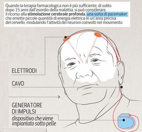 Come funziona la stimolazione cerebrale profonda adattativa