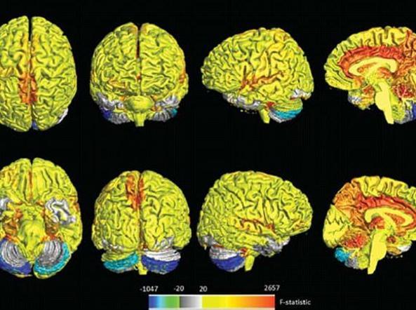 L'attività cerebrale maschile in blu, quella femminile in rosso