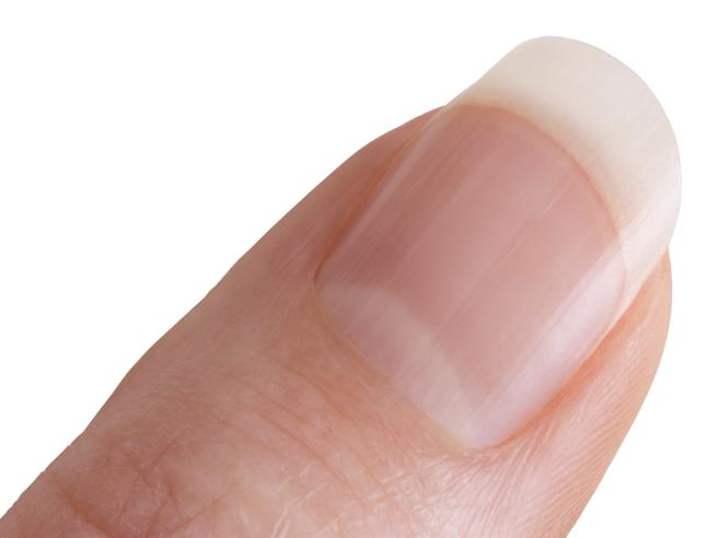 Le lunule bianche delle unghie e i problemi di salute che possono segnalare