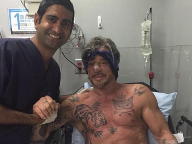 Mickey Rourke si rifà il naso, su Instagram la foto con il chirurgo